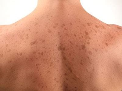 Chocolate Spots by Related Keywords Suggestions For Liver Spots