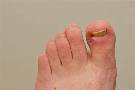 Toe Nail by Image Gallery Toenail