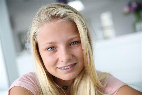 blonde teen tongue huerter orthodontics huerter orthodontics has been in