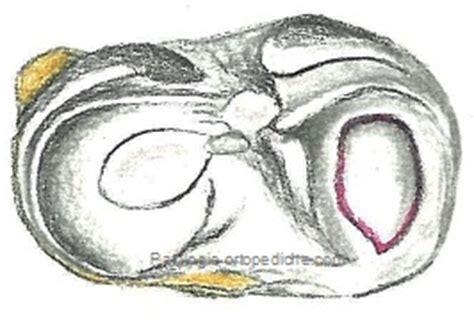 corno posteriore menisco interno lesioni meniscali dott fabrizio rivera