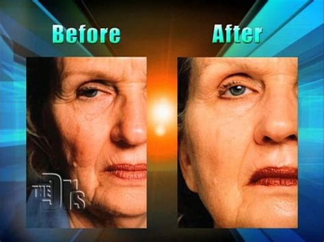 plastic surgery or natural aging changes 142 best images about facial fitness on pinterest