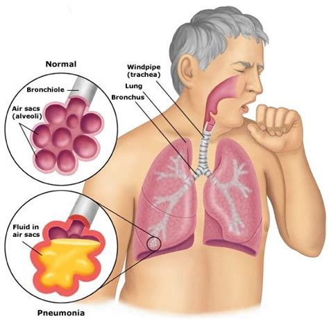 home remedies for walking pneumonia 25 best ideas about symptoms of pneumonia on
