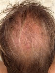 hair cuts for thining and bald spots would you fork out a hair raising 163 12 000 to fix your bald