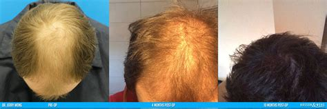 fue post op timeline shock loss 4 months after hair transplant hairsstyles co