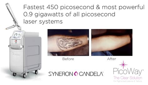 picoway tattoo removal machine amp results laser tattoo