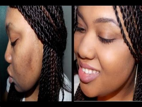 cover  hyperpigmentation  acne scars youtube