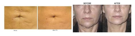 cowlicks treatments in northern virginia skin tightening treatment leesburg reflections image center