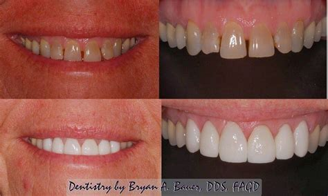 11 best porcelain veneers images wheaton dental veneers before and after bauer smiles