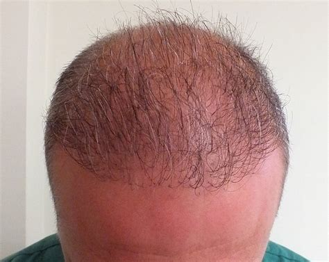 bad hair transplants embarrassed of a bad hair transplant hair transplant