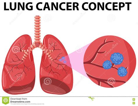 lung cancer diagram diagram of lung cancer concept stock vector image 74438193