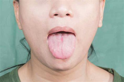 la lengua de los 8430618813 191 qu 233 es la lengua geogr 225 fica causas y tratamiento ed barcelona