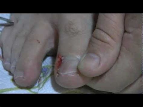 how to cut toenails how to cut out an ingrown toenail easy self surgery done at home