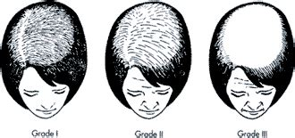 ludwig scale female androgenetic alopecia balding blog hair loss information page 679 of 1268