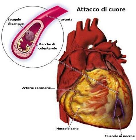 sintomi infarto sette segni per riconoscere un attacco infarto del miocardio cause sintomi emergenza e cure