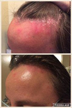 best hairstyles for scalp psoriasis did you know monat s rejuveniqe oil can help clear up skin