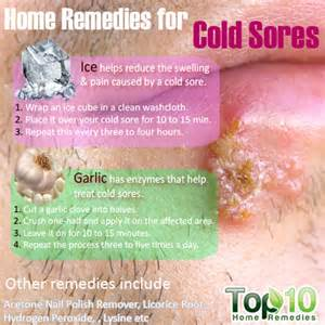 home remedies for a cold sore home remedies for cold sores top 10 home remedies