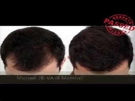 real minoxidel results lipogaine minoxidil before after review results youtube
