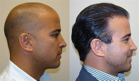 is hair transplant safe aldo testimonials reviews about dr brett bolton