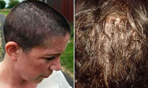 glue in hair extensions before and after photos mum left with bleeding scalp after hair extensions applied