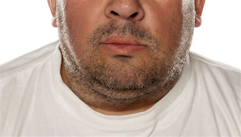 hate  double chin    easy home remedies