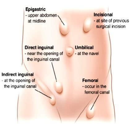c section incisional hernia symptoms hernia deepam medi tours