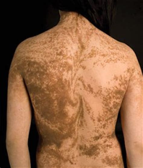 mosaic pattern skin homosexuality and chimerism rethinking our dna cutting