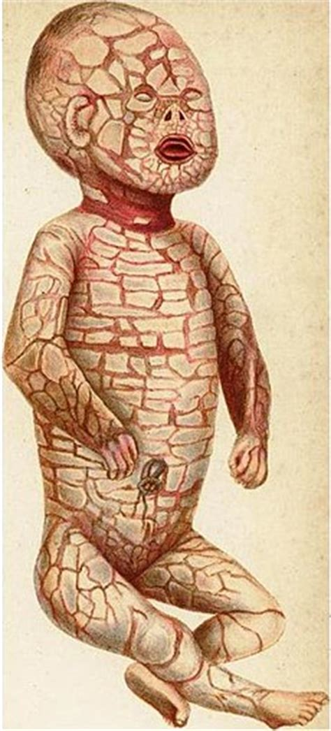 Harlequin I Do I Do For Now harlequin type ichthyosis the free encyclopedia