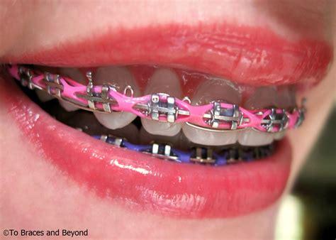color braces cute braces colors for teens girls braces pinterest