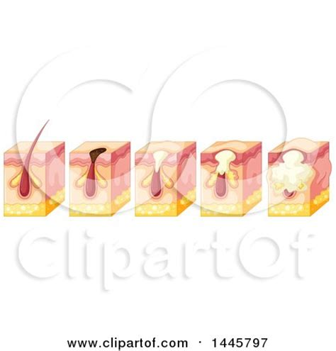 royalty free human skin clip vector images illustrations istock clipart of a diagram of a forming pimple in the epidermis human skin royalty free