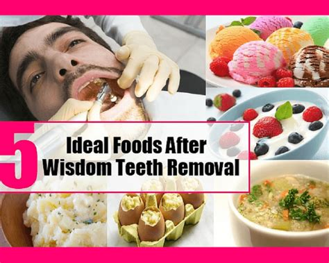 best food to eat best foods to eat after tooth extraction wisdom tooth