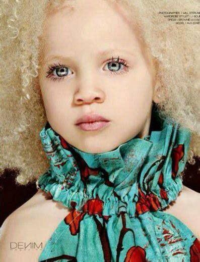 Beautiful Albino Girl Beautiful Black Albinos