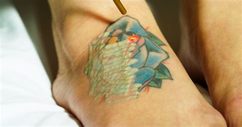 color tattoo removal phaze laser removal brings multicolored