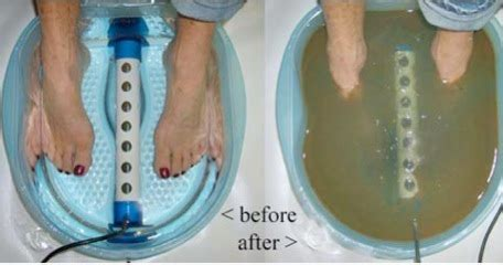 Foot Detox Foot Bath Eugene Or by Ionic Foot Detox