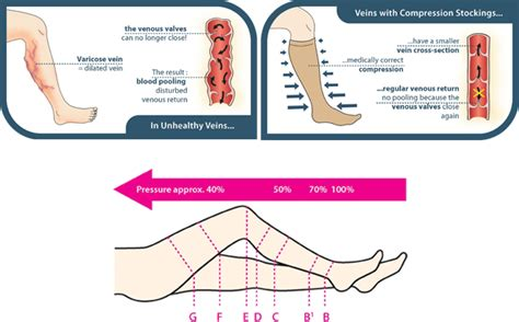 what to put in stockings compression stockings south charlotte general and
