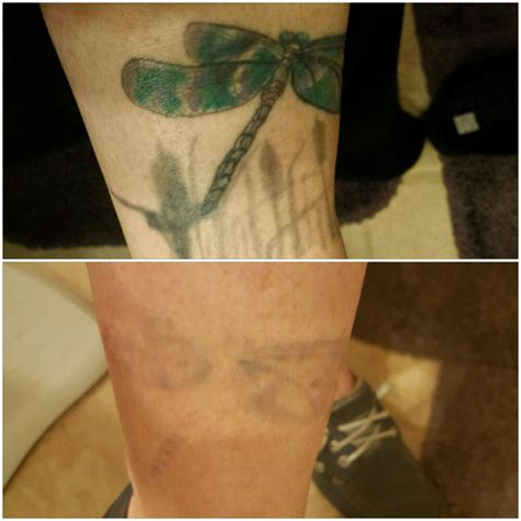 best tattoo removal in atlanta best 25 picosure removal ideas on