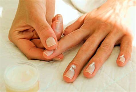 nail salon faqs skin problems center medical beauty problems pictures cellulite stretch marks and