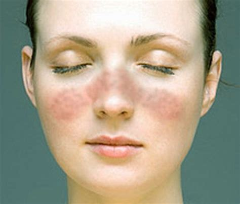 lupus rash pictures