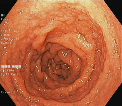 mosaic pattern duodenum spiral enteroscopy value for the celiac disease diagnosis