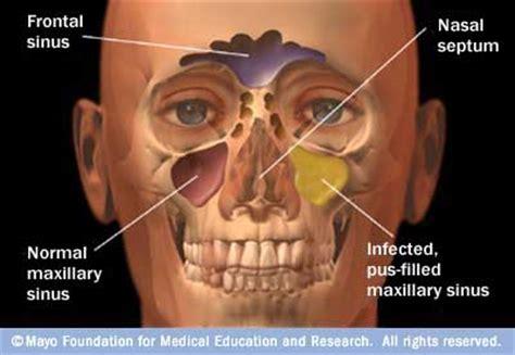 Sinus Resdung sinusitis causes symptoms treatment sinusitis