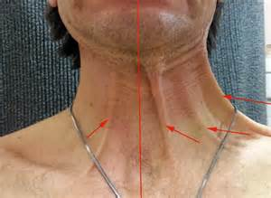 ganglion cou temoignage chirurgie du cou