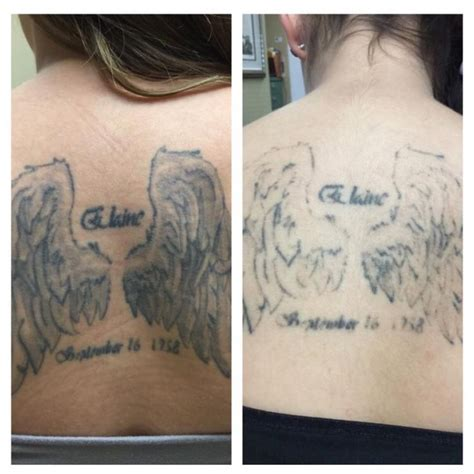 laser tattoo removal after one session 251 best get rid removal solution