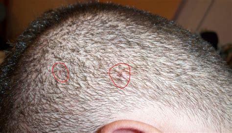 granitos en el cuero cabelludo me pica la cabeza y tengo granos en el cuero cabelludo