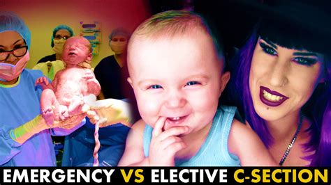 how to get an elective c section live c section footage comparing emergency vs elective