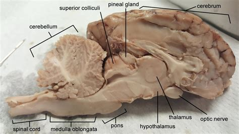 sheep brain diagram diagram sheep brain dissection diagram