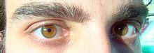 determining eye color iris anatomy