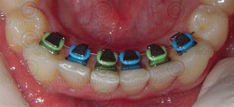apparecchio denti interno costi eccesso di zelo in ortodonzia