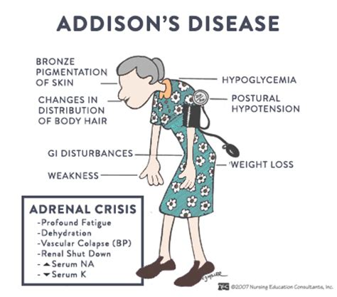 addisons disease dogs s crisis in dogs
