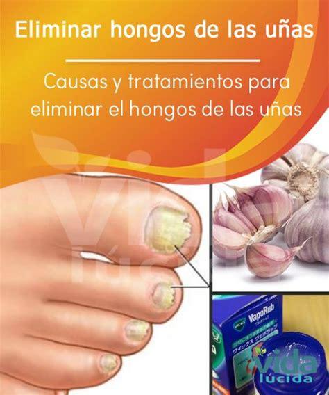 tratamiento de hongos y megabacterias hongos en las u 241 as de los pies y manos 7 tratamiento