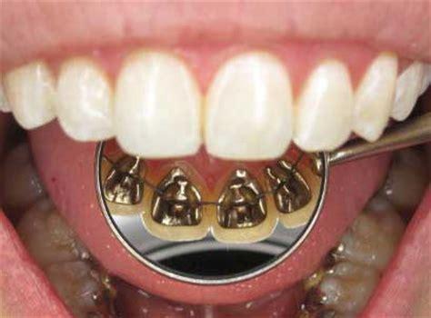 apparecchio interno ortodonzia invisibile varese studio ciatti tradate