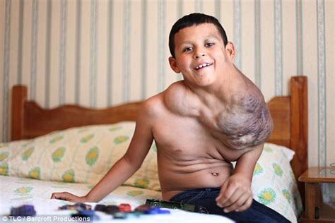 ten year old boy nudists mexican boy saved from the tumour on his neck by surgery